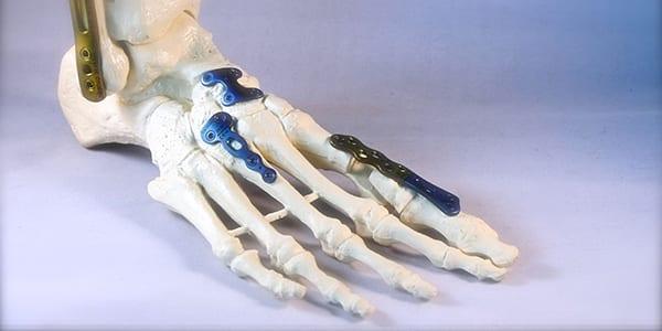 Fuß - und Handchirurgie